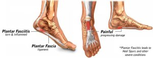 plantar_fasciitis_clip_image001